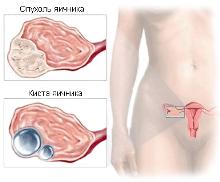 рак яичника, киста яичника