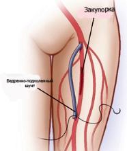 Шунтирование артерий нижних конечностей