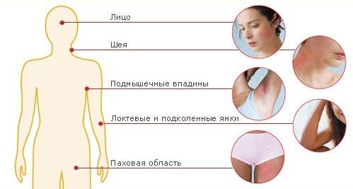 локализация дерматита