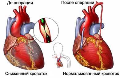 аортокоронарное шунтирование, акш