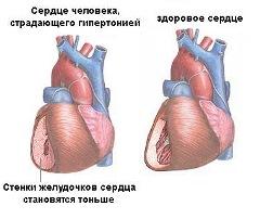 сердце здоровое и сердце человека с гипертонией