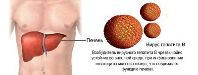 Лечение гепатита B в Израиле
