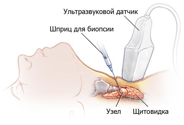 Диагностика рака щитовидной железы в Израиле