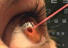 лечение зрения в израиле