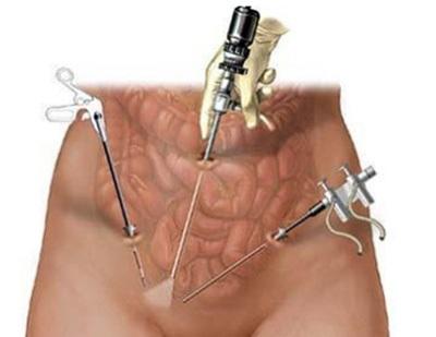 лапароскопическая миомэктомия