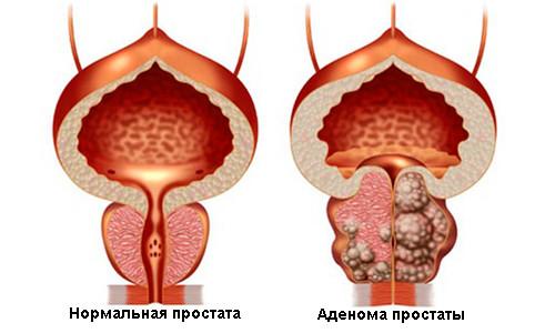 Более эффективное средство от простатита