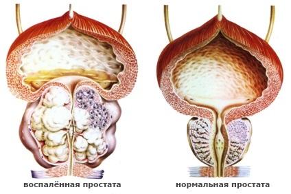 Как вылечить рак аденому простаты