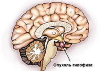 Эндоудаление аденомы гипофиза