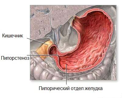 Лечение пилоростеноза в Израиле