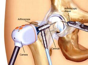 Артроскопия тазобедренного сустава в Израиле