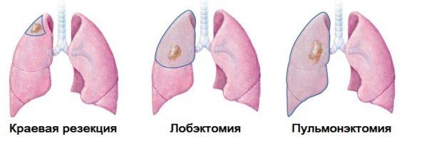 Торакоскопическая лобэктомия