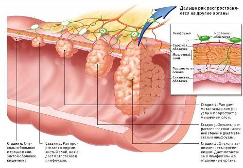 Лечение рака кишечника в Израиле