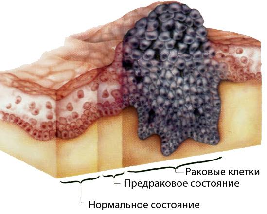 Лечение рака кожи в Израиле