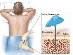 Аспирация костномозговой массы