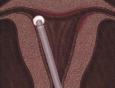 Абляция эндометрия в Израиле