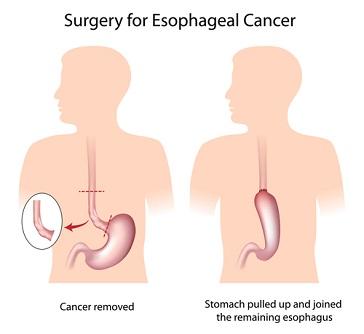 Эзофагэктомия- удаление рака пищевода