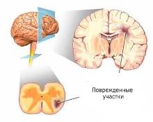 поврежденные участки мозга при рассеянном склерозе, рассеянный склероз