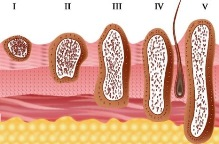 стадии рака кожи