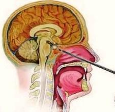 Эндоскопическое лечение аденомы гипофиза