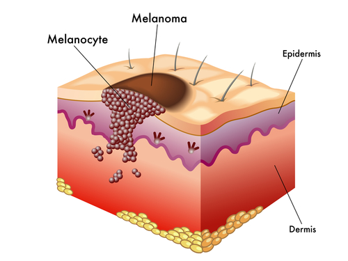 Эпидемиологический надзор за гепатитом в. методические указания му 3.1.2792-10