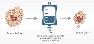 влияние химиотерапии