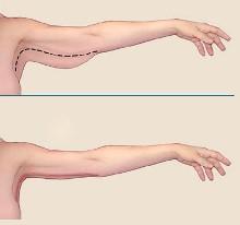 брахиопластика до и после, подтяжка кожи рук