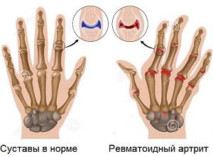 здоровый сустав и ревматоидный артрит, лечение ревматоидного артрита в Израиле