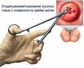 Биопсия шейки матки в Израиле
