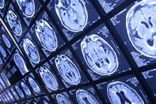 диагностика, медицинская визуализация