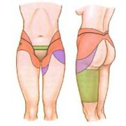 Подтяжка нижней части тела, поясная липэктомия