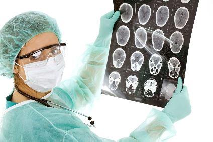 Врач рассматривает снимок  мозга