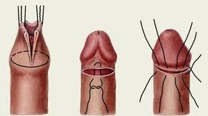 как проводится хирургическое обрезание