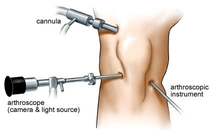Артроскопия мениска