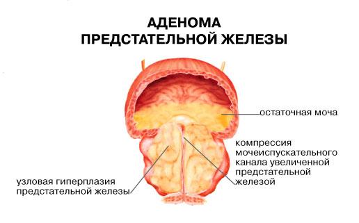 Виды простатитов и их симптомы