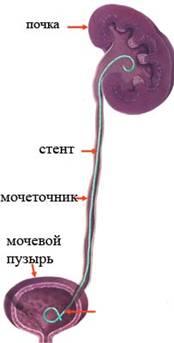 Удаление стента из мочеточника