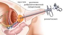 Лечение простаты, удаление доброкачественной гиперплазии