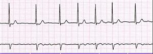 ЭКГ - мерцательная аритмия