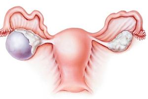 Овариэктомия (полостная)
