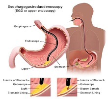 эзофагоскопия