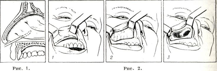 операция колдуэлла-люка
