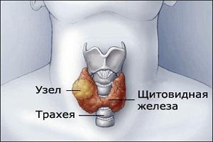 Удаление опухоли щитовидной железы