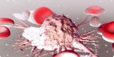 Лечение канцероматоза брюшины в Израиле