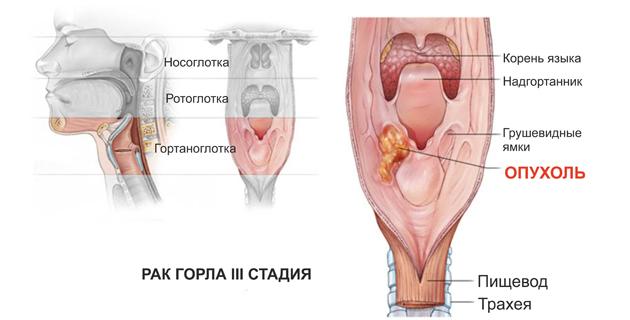 Где лечить рака горла
