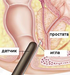 Признаки фиброза предстательной железы